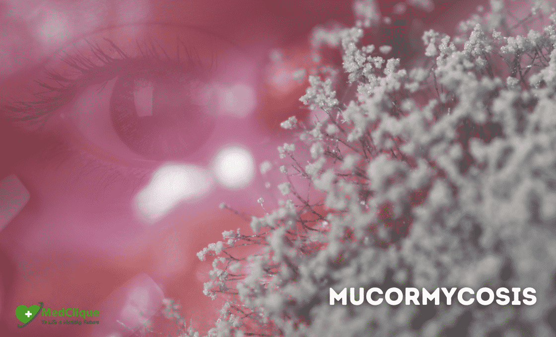 Everything you need to know about Mucormycosis.
